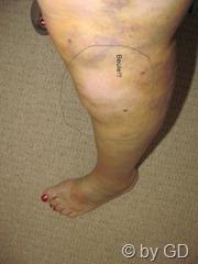 Mein ramponiertes Bein